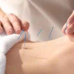 Slimming Acupuncture